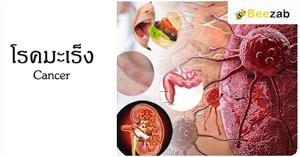 โรคมะเร็ง ก้อนเนื้อร้าย การเกิดมะเร็ง รักษามะเร็ง