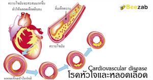 โรคหัวใจและหลอดเลือด โรคหัวใจ โรคเส้นเลือด โรคระบบเลือด