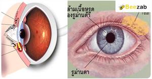 โรคตา โรคต่างๆ โรคทางสายตาและการมองเห็น โรค