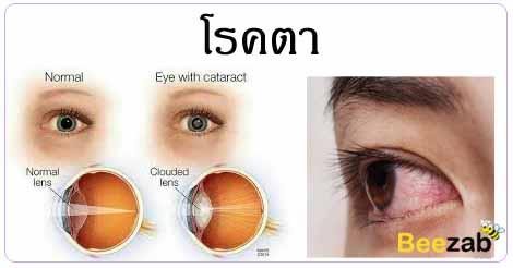 โรคตา โรคสายตา โรคหนังตา โรคเกี่ยวกับตา