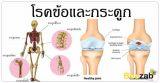โรคกระดูก โรคข้อ เกี่ยวกับข้อและกระดูก การรักษาโรค