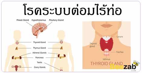 โรคระบบต่อมไร้ท่อ โรคฮอร์โมน โรคต่างๆ โรคไม่ติดต่อ