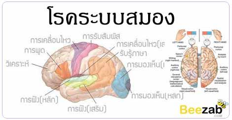 โรคสมอง โรคเกี่ยวกับความจำ โรคไม่ติดต่อ