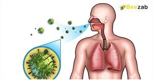 โรคติดเชื้อ การติดเชื้อ โรคต่างๆ การรักษาโรค