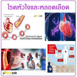 โรคหัวใจ โรคหลอดเลือด โรคหัวใจและหลอดเลือด โรค