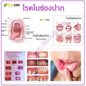 โรคเกี่ยวกับปาก โรคในช่องปาก โรค การรักษาโรค