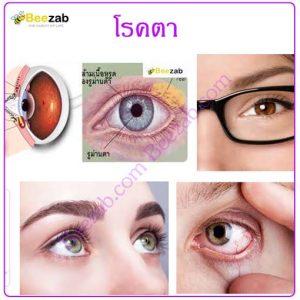โรคตา โรคเกี่ยวกับตา โรคเกี่ยวกับการมองเห็น โรคเกี่ยวกับสายตา