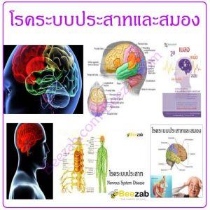 โรคระบบประสาทและสมอง โรคระบบประสาท โรคสมอง โรค
