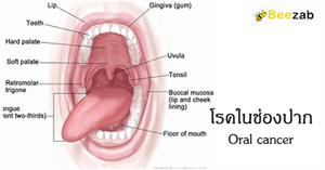 โรคในช่องปาก ความผิดปรกติในช่องปาก โรคลิ้น โรคเหงือก