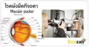 ผังผืดที่จอตา โรคตา โรคคนแก่ โรคเกี่ยวกับดวงตา