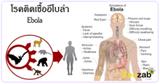 อีโบล่า โรคติดต่อ โรคติดเชื้อ โรคระบาด