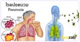 โรคปอดบวม โรคระบบทาเดินหายใจ โรคติดเชื้อ โรคปอด