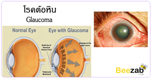 โรคต้อหิน โรคตา ตาต้อ โรคเกี่ยวกับดวงตา