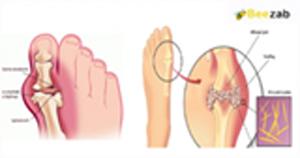 โรคเก๊าท์ โรคข้อและกระดูก กรดยูริกในเลือดสูง โรคต่างๆ