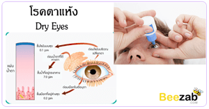 โรคตาแห้ง โรคตา ภาวะตาแห้ง การรักษาโรคตาแห้ง