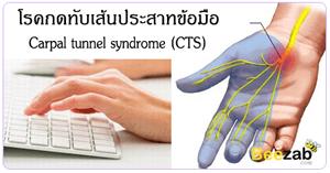 โรคกดทับเส้นประสาทข้อมือ โรคระบบประสาท โรคข้อและกระดูก ออฟฟิตซินโดรม