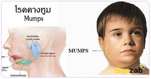 โรคคางทูม โรคติดต่อ โรคติดเชื้อ บวมที่หลังหู