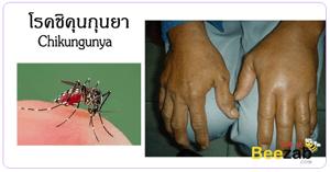 โรคไข้ปวดข้อ โรคชิกุนยา โรคติดเชื้อ โดนยุงลายกัด