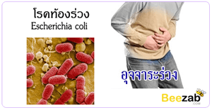 โรคท้องร่วง โรคติดเชื้อ อุจจาระร่วง ขี้แตก