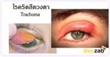 ริดสีดวงตา ติดเชื้อที่เปลือกตา โรคตา โรคเกี่ยวกับดวงตา