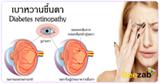 เบาหวานขึ้นตา เบาหวานขึ้นจอประสาทตา โรคเบาหวาน โรคตา