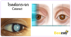 โรคต้อกระจก โรคตา การรักษาต้อกระจก สาเหตุของโรคต้อกระจก