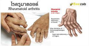 รูมาตอยด์ โรคข้อและกระดูก โรคข้ออักเสบรูมาตอยด์ โรคไม่ติดต่อ