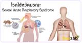 ไข้หวัดมรณะ โรคระบบทางเดินหายใจเฉียบพลันร้ายแรง โรคติดต่อ SARS