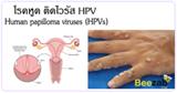 โรคหูด โรคติดต่อทางเพศสัมพันธ์ โรคHPV โรคติดต่อ