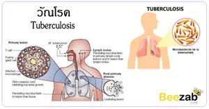 วัณโรค โรคติดต่อ โรคติดเชื้อ โรคระบบทางเดินหายใจ