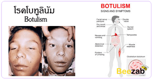 โรคโบทูลินัม โรคติดเชื้อ โรคระบบประสาท กล้ามเนื้ออ่อนแรง