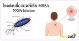 โรคติดเชื้อแบคทีเรีย MRSA โรคติดเชื้อ เชื้อแบคทีเรีย