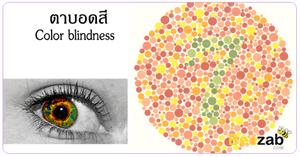 ตาบอดสี โรคตา โรคเกี่ยวกับดวงตา โรคไม่ติดต่อ