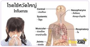 ไข้หวัดใหญ่ โรคติดต่อ โรคติดเชื้อ เป็นไข้หวัดใหญ่