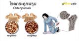 โรคกระดูกพรุน โรคกระดูกบาง โรคข้อและกระดูก โรคไม่ติดต่อ
