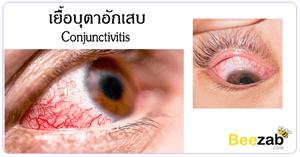 เยื้อบุตาอักเสบ โรคตา โรคเกี่ยวกับดวงตา ตาอักเสบ