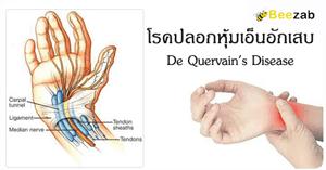 โรคปลอกหุ้มเอ็นข้อมืออักเสบ โรคข้อและกระดูก โรคไม่ติดต่อ ปวดข้อมือ