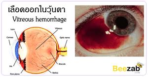 เลือดออกในวุ้นตา โรคตา โรคไม่ติดต่อ โรคเกี่ยวกับดวงตา