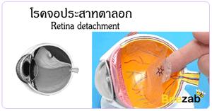 จอประสาทตาลอก จอประสาทตาหลุด โรคตา โรคเกี่ยวกับดวงตา