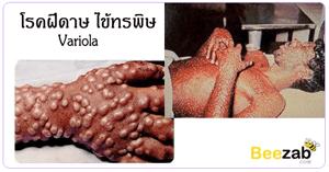 โรคฝีดาษ ไข้ทรพิษ โรคติดต่อ โรคระบาด