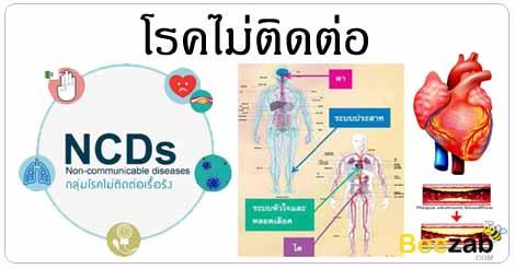 โรคไม่ติดต่อ โรคต่างๆ การรักษาโรค