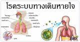 โรคระบบทางเดินหายใจ โรคเกี่ยวกับการหายใจ โรคปอด โรคในช่องอก
