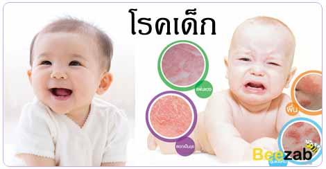 โรคเด็ก โรคเกิดกับเด็ก โรคติดเชื้อ
