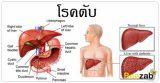 โรคตับ โรคเกี่ยวกับตับ โรคในช่องท้อง โรคต่างๆ