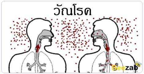 วัณโรค ปอดติดเชื้อ โรคทางเดินหายใจ โรคติดต่อ
