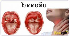 โรคคอตีบ โรคหูคจมูก โรคติดเชื้อ โรคลำคอ