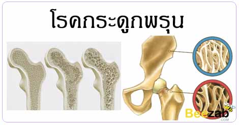 โรคกระดูกพรุน กระดูกเปราะ โรคข้อและกระดูก