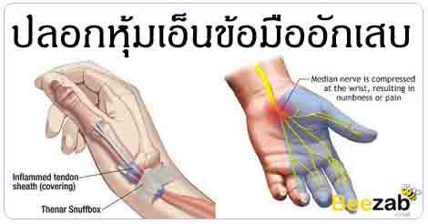 ปลอกหุ้มเอ็นข้อมืออักเสบ โรคข้อและกระดูก ชาแขนชาข้อมือ