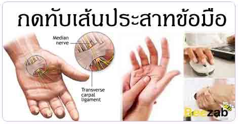 โรคกดทับเส้นประสาทเอ็นข้อมือ โรคข้อและกระดูก โรคไม่ติดต่อ โรคออฟฟิตซินโดรม