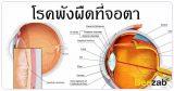 พังผืดที่จอตา โรคตา โรคไม่ติดต่อ รักษาพังผืดที่ตา